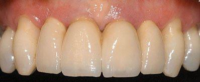 implant patient after
