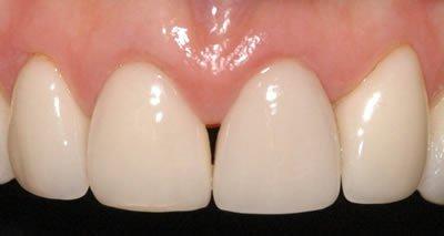 post-op-gingivitis-1
