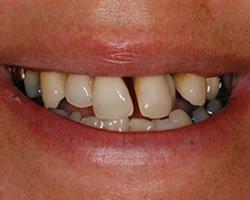 Patient cannot tolerate denture