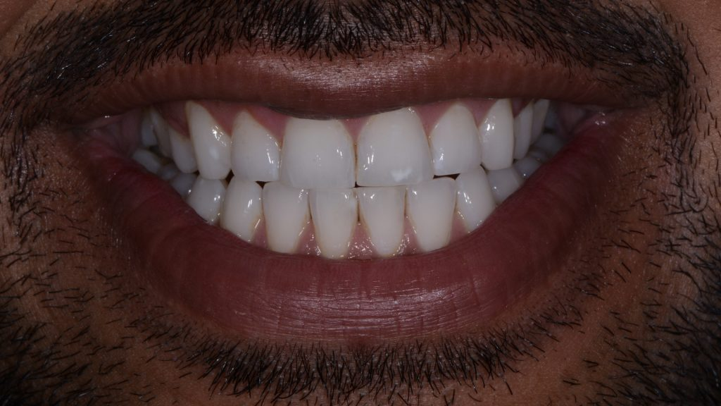 white spot front tooth